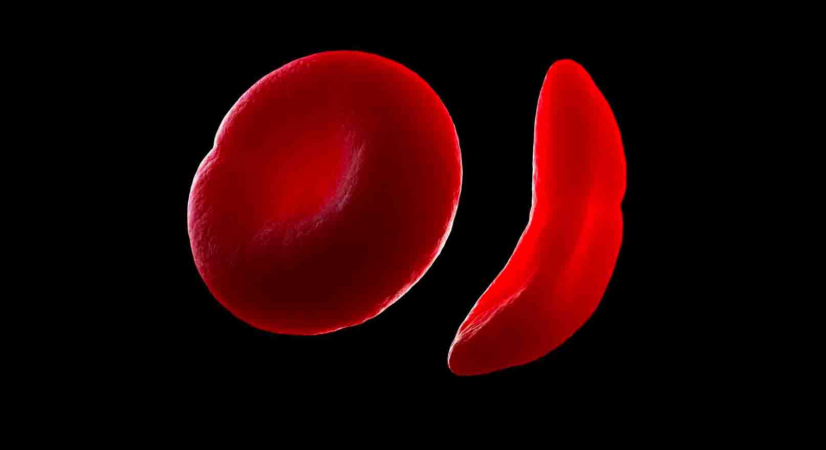 UNESCO Celebrates 47th World Sickle Cell Day