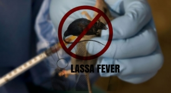 Lassa Fever: Kano Confirms 3 Dead, 292 On Watch List
