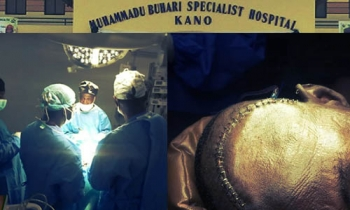 Buhari Specialist Hospital Conducts First Brain Surgery